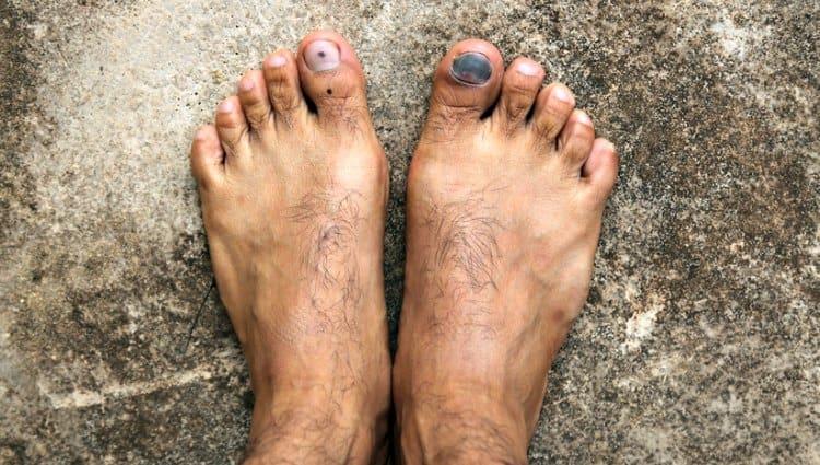 toenail dremel runners toe